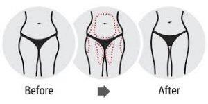 come dimagrire il seno in menopausa