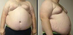 massa grassa uomo calcolo